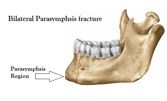 Bilateral Parasymphysis fracture