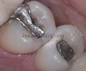 Causes of Failure of Dental Restorations