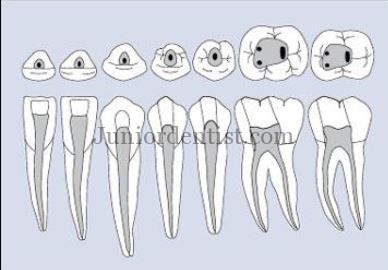 Mandibular access cavity shapes