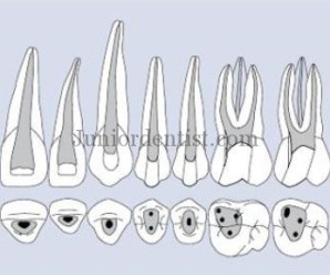 Maxillary teeth access Cavity Shapes