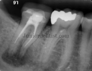 Root Canal Treatment failure