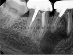 Root Canal Treatment failures