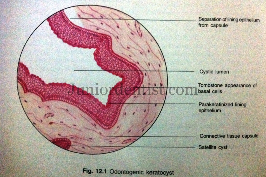 Histopathological features of Odontogenic Keratocyst