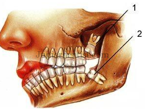 3rd molar impaction causes - lack of space