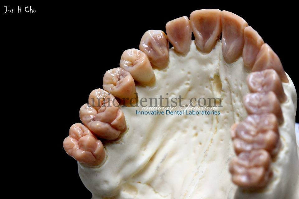 Dental Arch Wax Carvings Dental Art