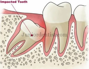 Local Examination for Diagnosis of Impacted 3rd molar