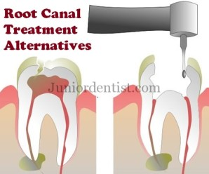 Root canal Treatment alternatives