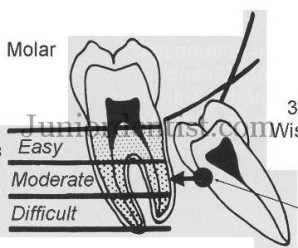 Wharfs Assessment of 3rd molar Impaction winters lines