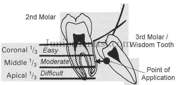 wharf 39 s assessment of impacted third molar. Black Bedroom Furniture Sets. Home Design Ideas