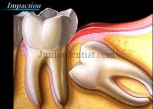 why should you remove 3rd molar if impacted