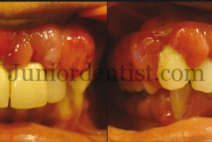 Drugs causing Drug induced Gingival Enlargement