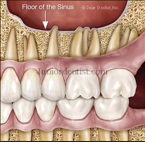 Sinusitis caused by tooth infection