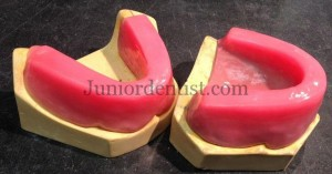 occlusal rims for recording Jaw relations