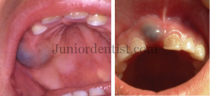 Eruption cyst or Hematoma incisor and molar