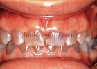 Osteogenesis Imperfecta - Shell Teeth oral findings
