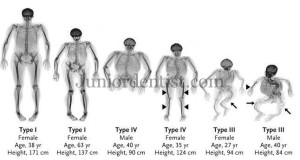 Osteogenesis imperfecta types - radiographic features