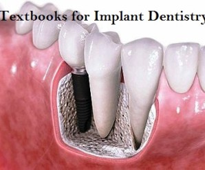 Textbooks for Dental Implantology