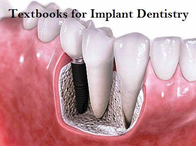 Textbooks for Dental Implantology