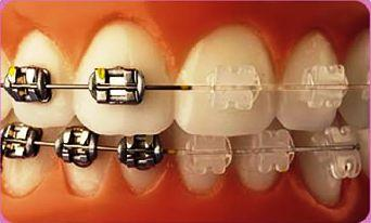 how to decide on Orthodontic Treatment - Invisible Braces vs normal braces