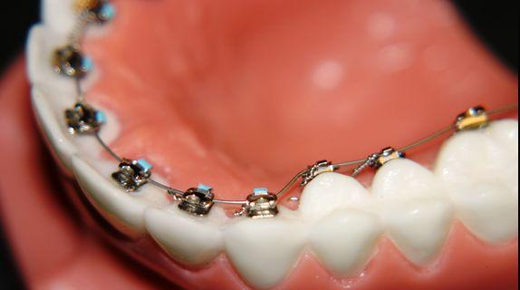 how to decide on Orthodontic Treatment - Lingual Braces