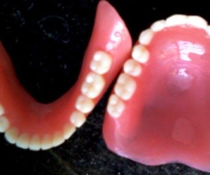 Hypersalivation or Sialorrhea in complete Denture patients