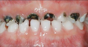 difference between nursing bottle caries and rampant caries