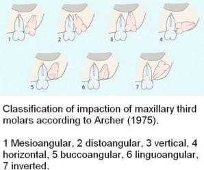 Classification of Maxillay 3rd molar impaction by Archer