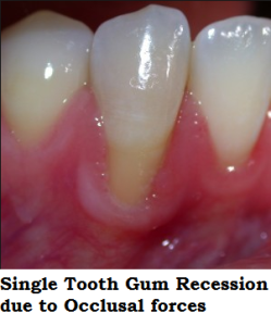 Single tooth gingival recession