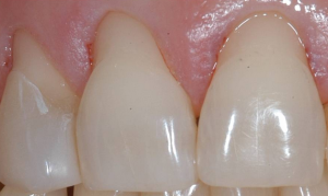 how to stop receding gums and gingival recession