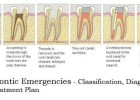 Endodontic Emergencies classification and diagnosis