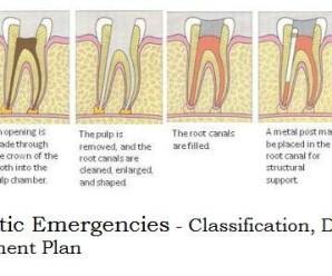 Endodontic Emergencies classification and diagnosis
