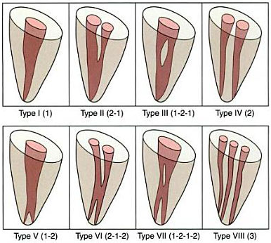 Vertucci et al Classification of Root Canal Morphology