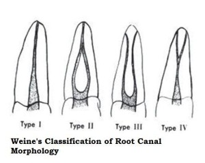 Weines Classification of Root Canal Morpholog