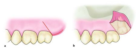 how to give Vertical Flap for extraction of maxillary third molar