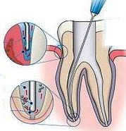 sodium hypochlorite use in root canal treatment