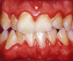 Relation of gingival disease with general health