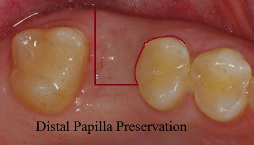 Distal papilla preservation flap for dental implants