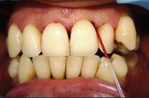 Gingival Crevicular blood can be used to screen diabetes