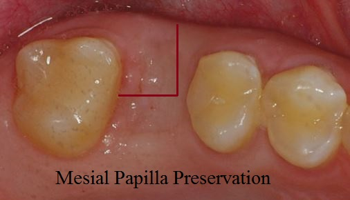 Mesial papilla preservation flap for dental implants