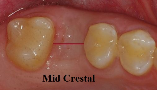 Mid crestal typs flap design for dental implants
