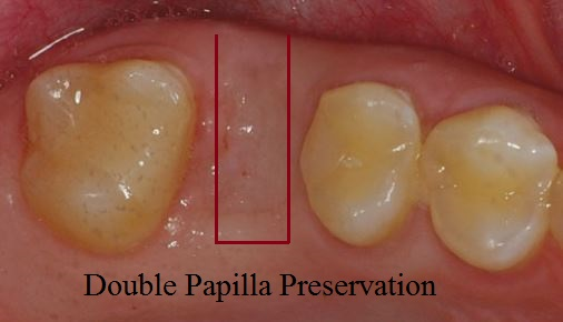 double papilla preservation type flap for dental implant