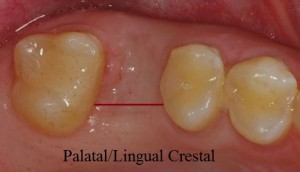 palatal or lingual crestal type incision for implants