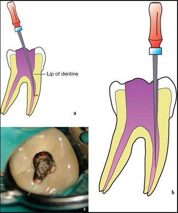 Objective of ideal access cavity straight line access