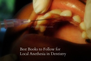 List of Books to follow for Local Anesthesia in Dentistry