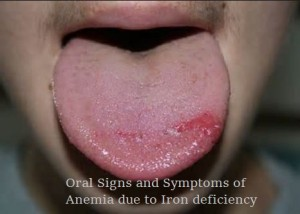 Oral signs and symptoms of iron deficiency anemia
