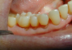 Abfraction of toothh