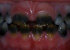 Discoloration of color of teeth - developmental disturbances