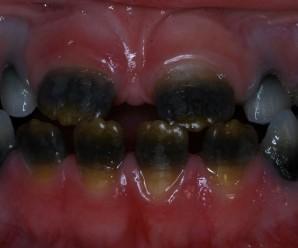 Discoloration of color of teeth - developmental disturbances
