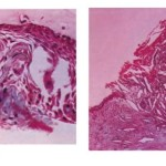 Radicular Cyst with Hyaline bodies histology