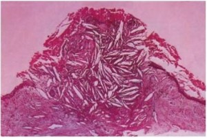 Radicular Cysts Histologic features